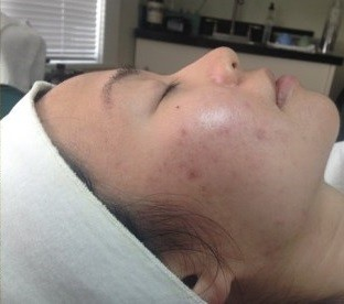 acne treatment removes pimples