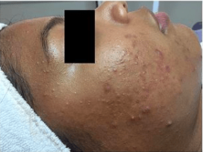 acne image before treatment